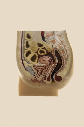 Laia Abril, A history of Misogyny, chapter one: On Abortion, KNITTING NEEDLE PROCEDURE, 2015